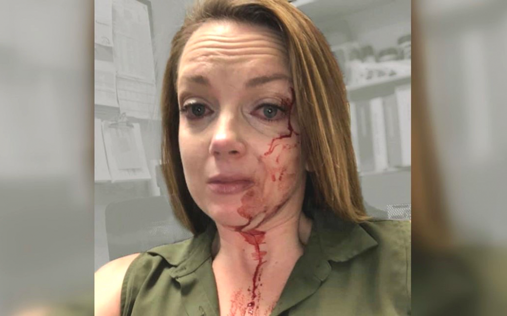冠状病毒爆发期间,加州零售员工遭顾客袭击,血流满面