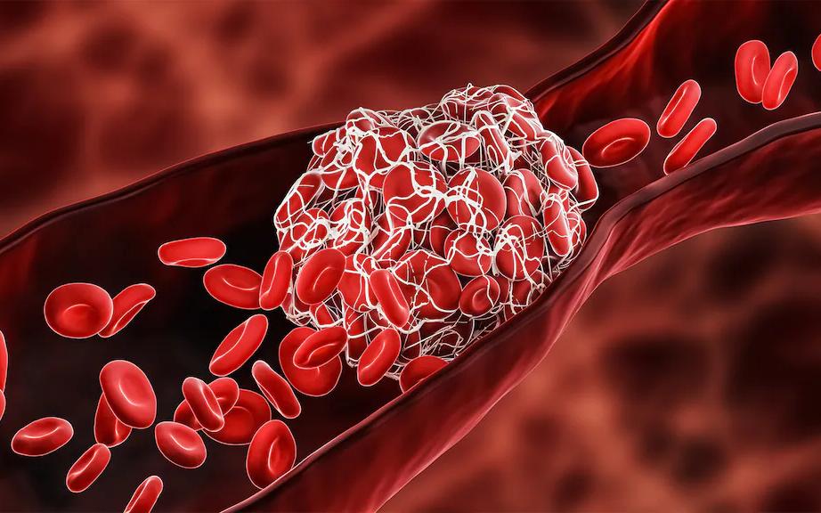 阿斯利康和強生疫苗爲何引發血栓   德國科學家找到答案:腺病毒引發自身免疫